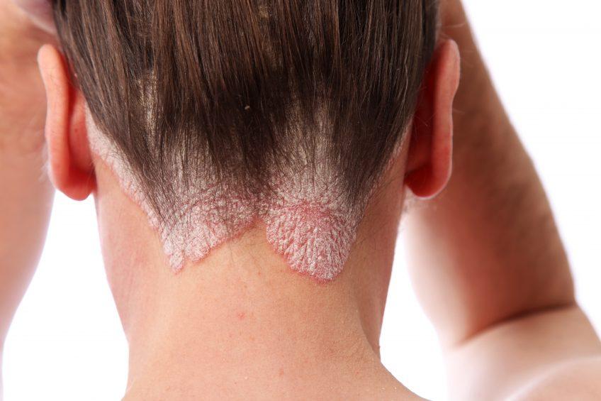 psoriasis on neck