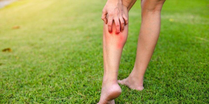 histamine intolerance blog image - itchy leg