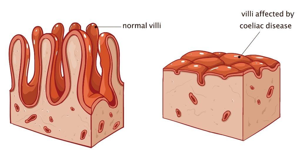 Healthy villi and coeliac villi