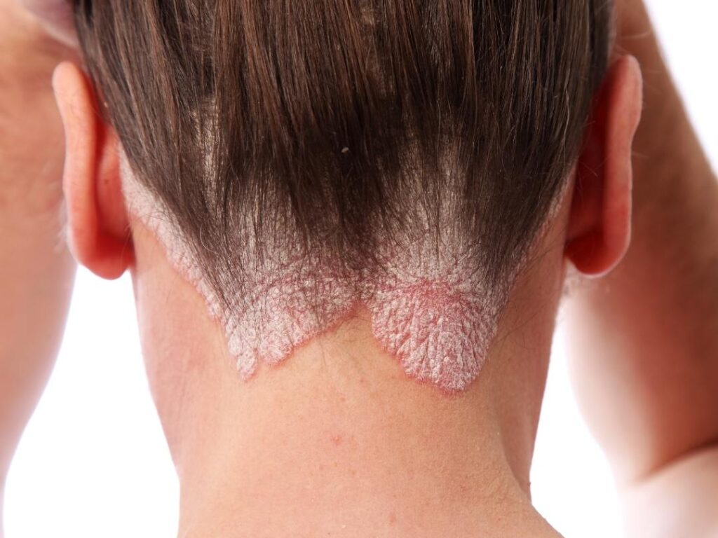 Psoriasis can be a sign of candida