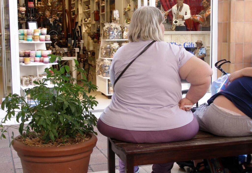 Obese woman - obesity can cause NAFLD